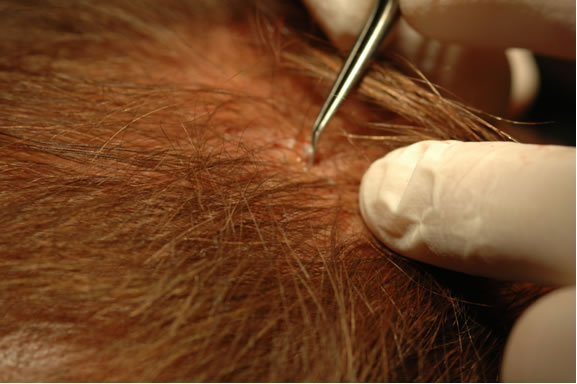 The follicle is placed into the site previously created.